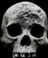 FolwinSkull-tiny